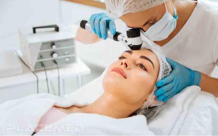 Guide d'achat de dermatoscope professionnel